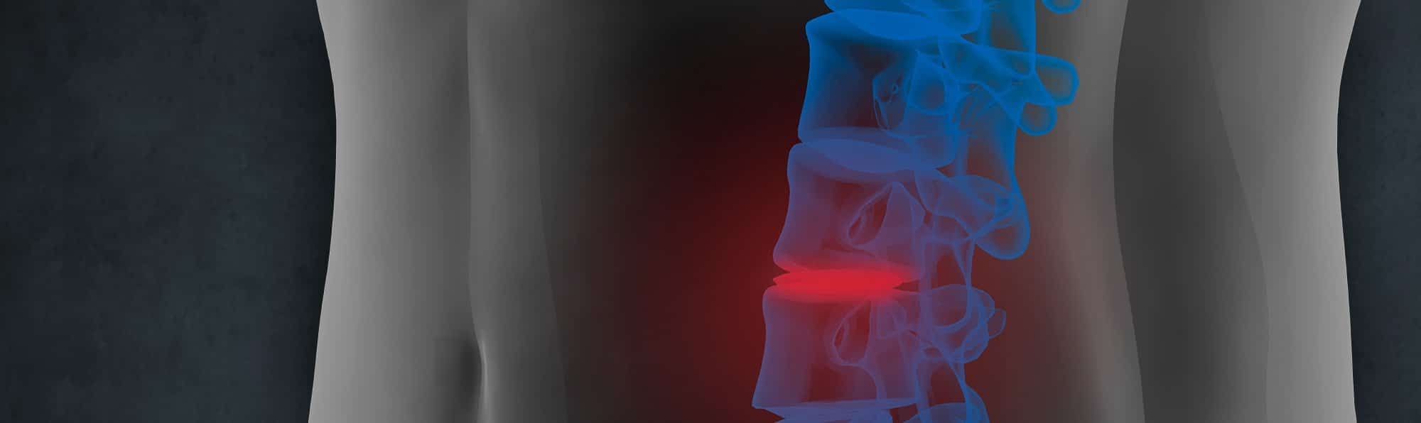 Orange county ca s premier non surgical spinal decompression clinic - Pittsburgh S Premier Spine Disc Specialists